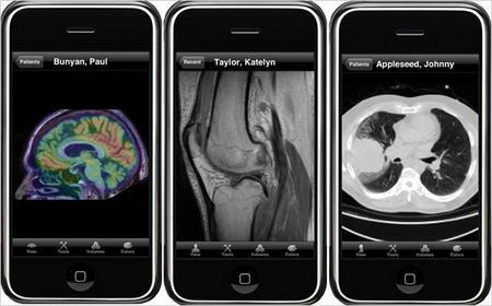 medical images displayed on a mobile phone
